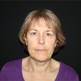 55-64 year old woman treated with Facelift before 3813838