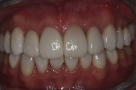 35-44 year old woman treated with Porcelain Veneers after 3241466