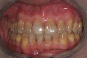 35-44 year old woman treated with Porcelain Veneers before 3241466