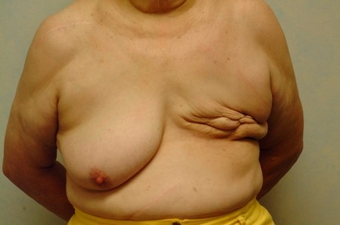 70-year-old Breast Reconstruction patient had bilateral reconstruction  before 963246
