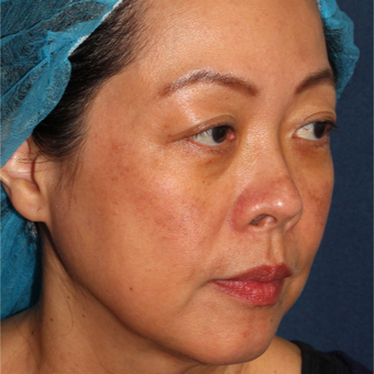 53 year old woman treated with Fraxel Dual and q-switched alex laser for age and brown spots after 3616912