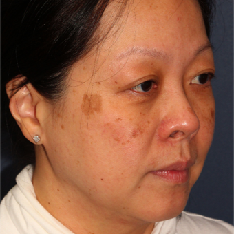 53 year old woman treated with Fraxel Dual and q-switched alex laser for age and brown spots before 3616912