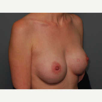 29 y/o Inframammary Sub Muscular Breast Augmentation after 3066187
