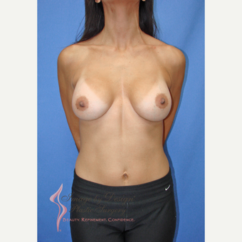 35-44 year old woman treated with Breast Augmentation after 3090721