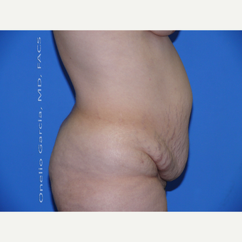 35-44 year old woman treated with Tummy Tuck before 2999070