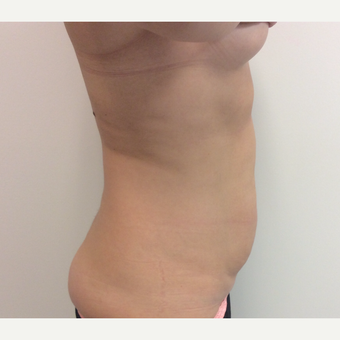 25-34 year old woman treated with Liposculpture before 3594783