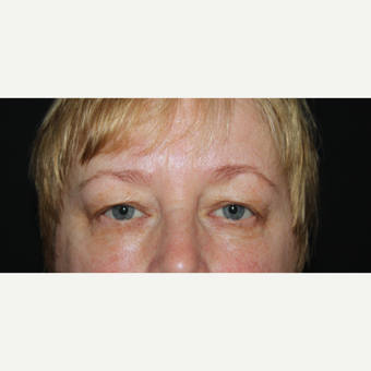 45-54 year old woman treated with Eyelid Surgery before 2789636