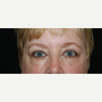 45-54 year old woman treated with Eyelid Surgery after 2789636