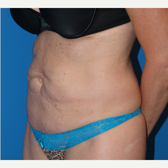 Tummy Tuck before 3807179