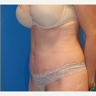 Tummy Tuck after 3807179