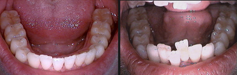 Invisalign after 109363