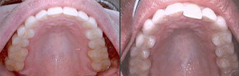 Invisalign before 109363
