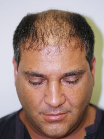 Hair Transplant-  2800 grafts before 173707