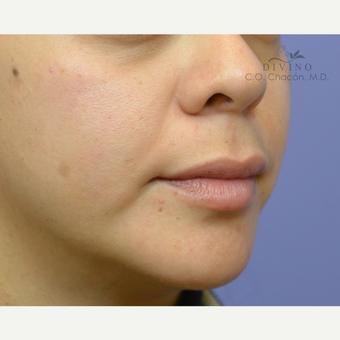 25-34 year old woman treated with Lip Augmentation before 3421894