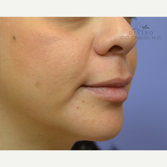 25-34 year old woman treated with Lip Augmentation after 3421894