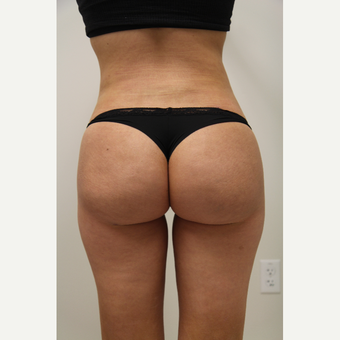 18-24 year old woman treated with Brazilian Butt Lift after 3266011