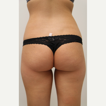 18-24 year old woman treated with Brazilian Butt Lift before 3266011