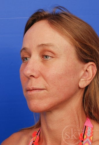 Facelift, Fat Transfer, Browlift, Fractionated Laser after 3114533