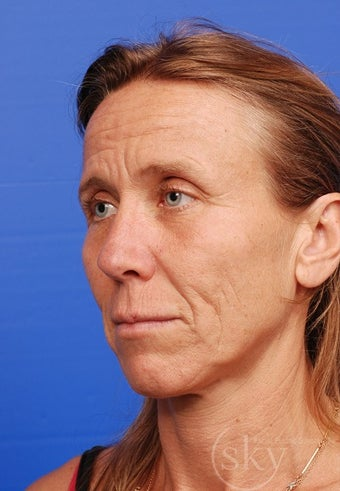 Facelift, Fat Transfer, Browlift, Fractionated Laser before 3114533