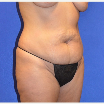35-44 year old woman treated with No-Drain Tummy Tuck before 3655686