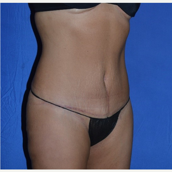 35-44 year old woman treated with No-Drain Tummy Tuck after 3655686