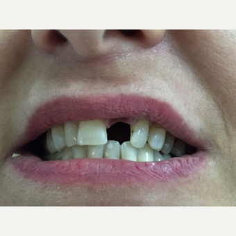 35-44 year old woman treated with Dental Implants