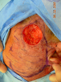 55-64 year old man treated with Mohs Surgery before 2668933