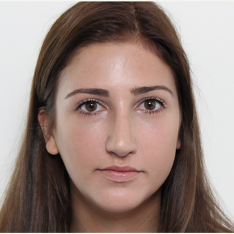 18-24 year old woman treated with Rhinoplasty after 3366748