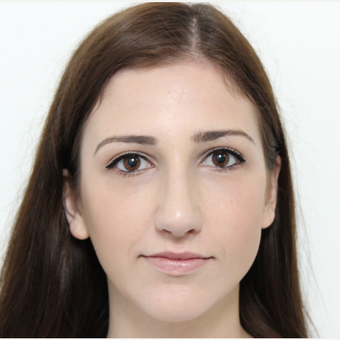 18-24 year old woman treated with Rhinoplasty before 3366748