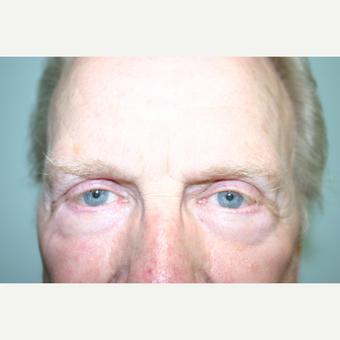 75 year old man treated with Eyelid Surgery after 3442591