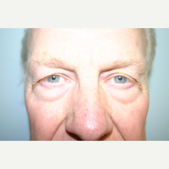 75 year old man treated with Eyelid Surgery before 3442591