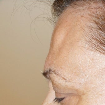 56 year old woman treated with Lipoma Removal from Forehead before 2065265