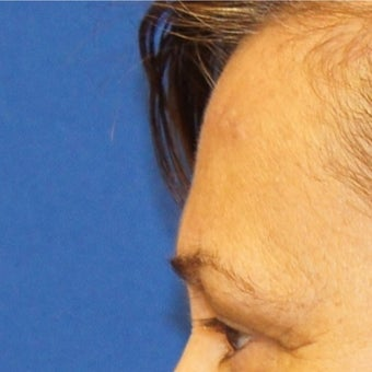 56 year old woman treated with Lipoma Removal from Forehead after 2065265