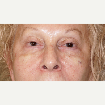 woman treated with Injectable Fillers to the cheeks and under eyes, immediate results after 2838287