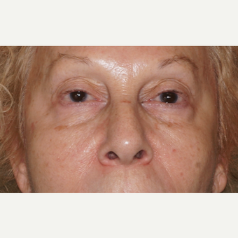 woman treated with Injectable Fillers to the cheeks and under eyes, immediate results before 2838287