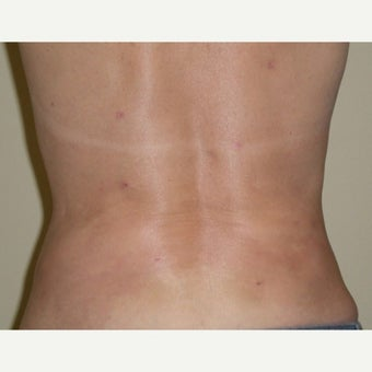 55-64 year old woman treated with SmartLipo MPX after 2046306