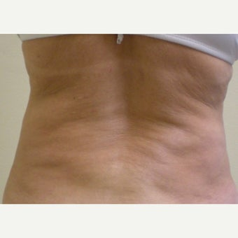 55-64 year old woman treated with SmartLipo MPX before 2046306