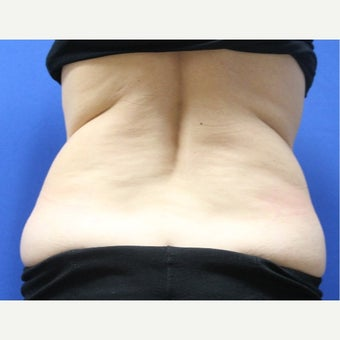 45-54 year old woman treated with SculpSure before 2421367