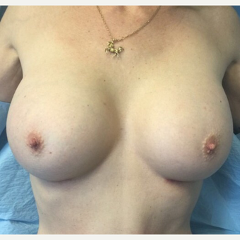 35-44 year old woman treated with Breast Augmentation after 3012200