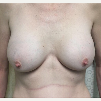 35-44 year old woman treated with Breast Augmentation before 3012200