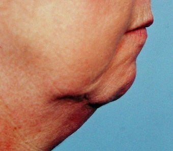 57 Year Old Female Treated For Weak Chin and Saggy Neck