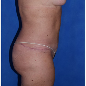35-44 year old woman treated with No-Drain Tummy Tuck after 3649516