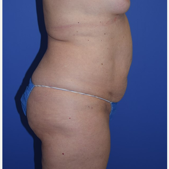 35-44 year old woman treated with No-Drain Tummy Tuck before 3649516