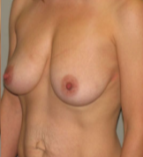 38 year old woman treated with Breast Augmentation before 3287341