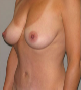 38 year old woman treated with Breast Augmentation after 3287341