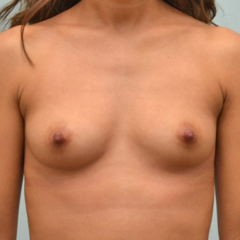 Breast Augmentation with 335cc shaped implants on 5'1, 95 pound patient. before 3176073