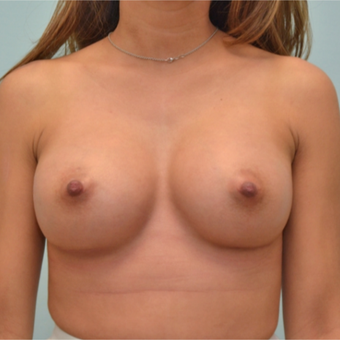 Breast Augmentation with 335cc shaped implants on 5'1, 95 pound patient. after 3176073