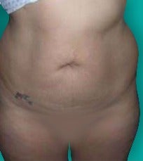 25-34 year old woman treated with Tummy Tuck before 3247484