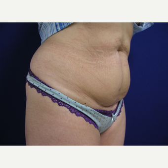 35-44 year old woman treated with Tummy Tuck before 3253878