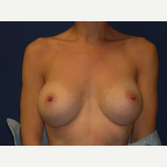 35-44 year old woman treated with Breast Augmentation after 3219939